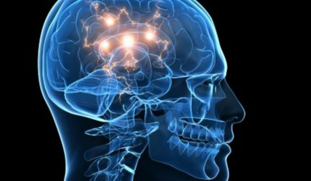 rama de la neurologia