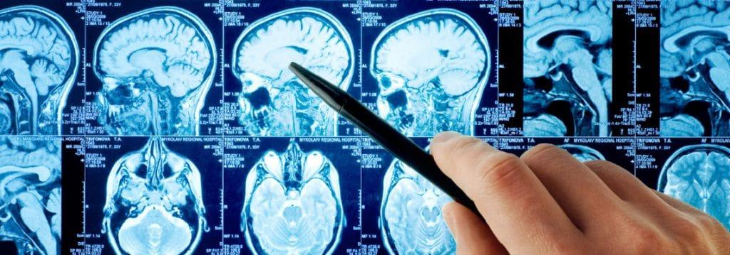 Qué es un neurologo