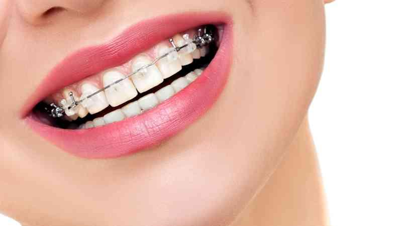 ventajas de estudiar odontología