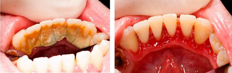 importancia de la periodontología