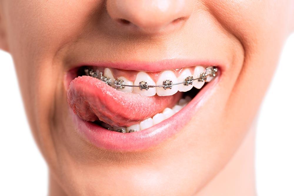 Ortodoncia normal