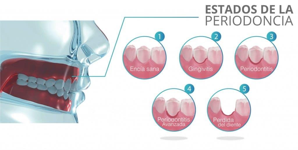 periodoncia vs ortodoncia